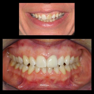 Porcelain Bonded to Metal Crown | Stanhope Place Dental Practice W2