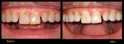 Composite bonding | Stanhope Place Dental Practice London W2