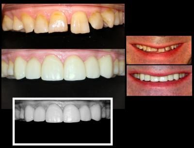 Dental crowns | Stanhope Place Dental Practice London W2