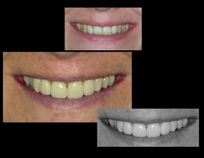Dental veneers | Stanhope Place Dental Practice London W2