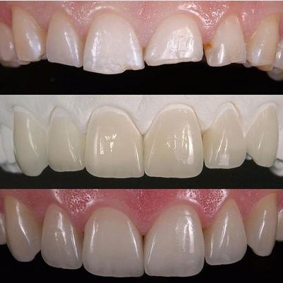 Porcelain veneers | Stanhope Place Dental Practice London W2